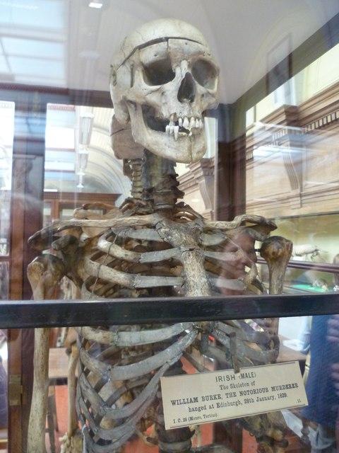 The skeleton of William Burke